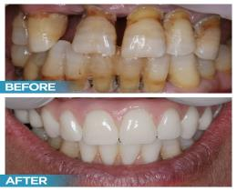 Dental Implant Before After